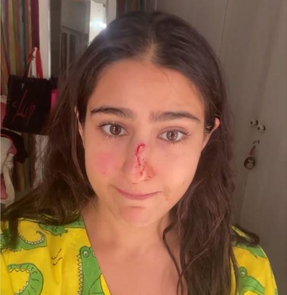 Photo of जानिए कैसे लगी सारा अली को चोट वीडियो शेयर कर, बोलीं-सॉरी अम्मा,अब्बा नाक काट दी मैंने